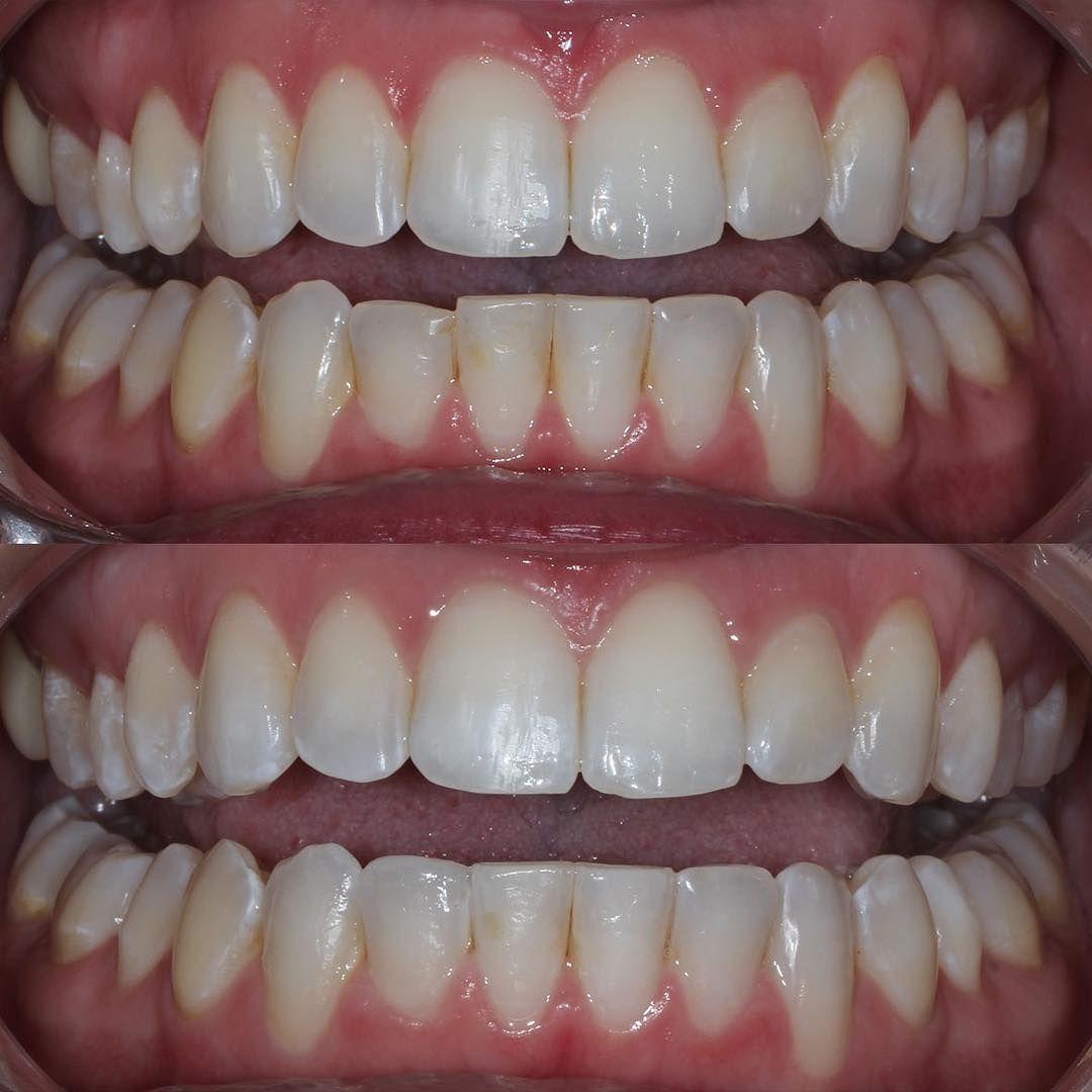 Dental assistant jobs near me 2019 dental dental