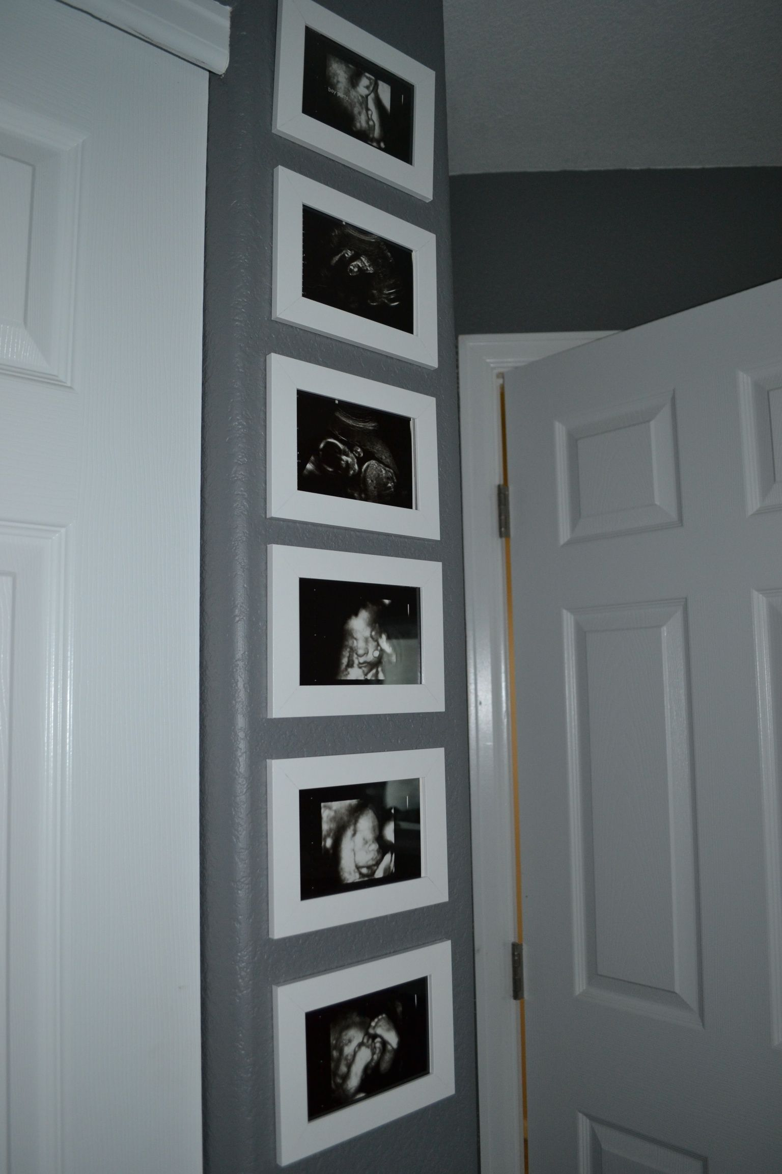 Brantleys modern nursery ultrasound nursery and babies and since my specialty will be ultrasound after my bsrt jeuxipadfo Choice Image