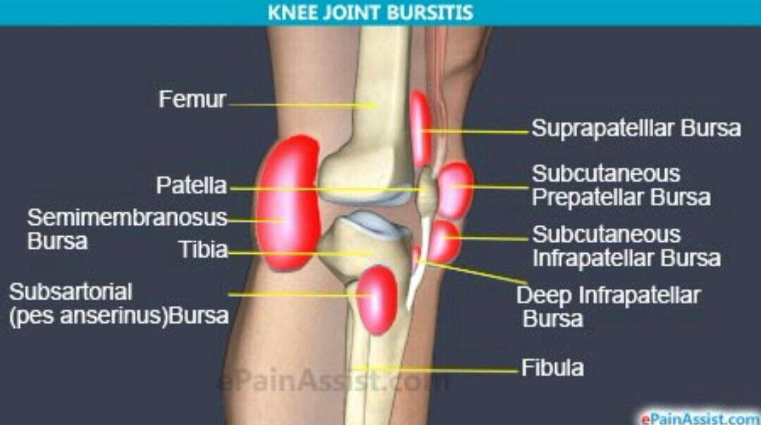 Knee Bursas Medical Knee Pain Arthritis Rheumatoid Arthritis