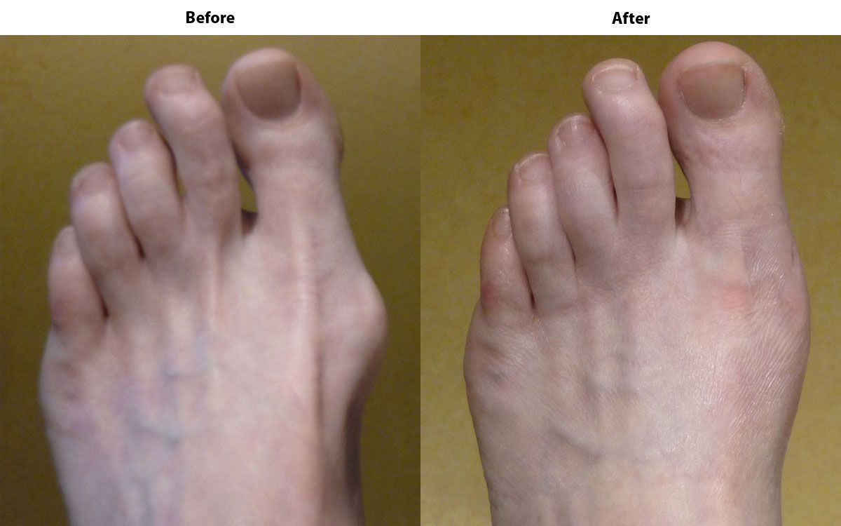 Before and after using the Jumpex Bunion Corrector