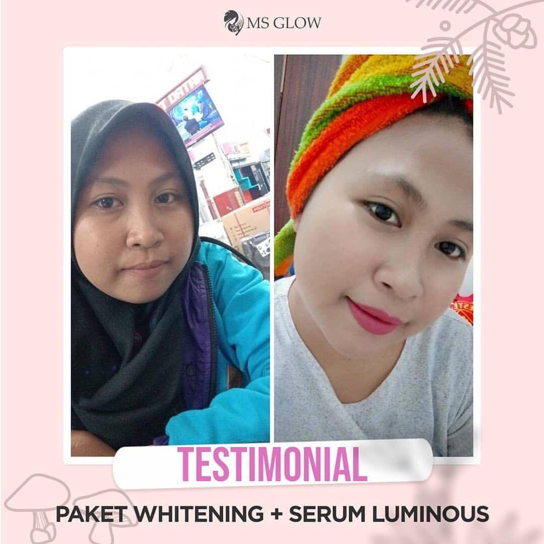 Testimoni Penggunaan Paket Wajah Ms Glow Yang Digunakan Secara Konsisten Dan Disesuaikan Dengan Jenis Kulit Yuk Pilih Skincare Series Serum Jenis Kulit Kulit