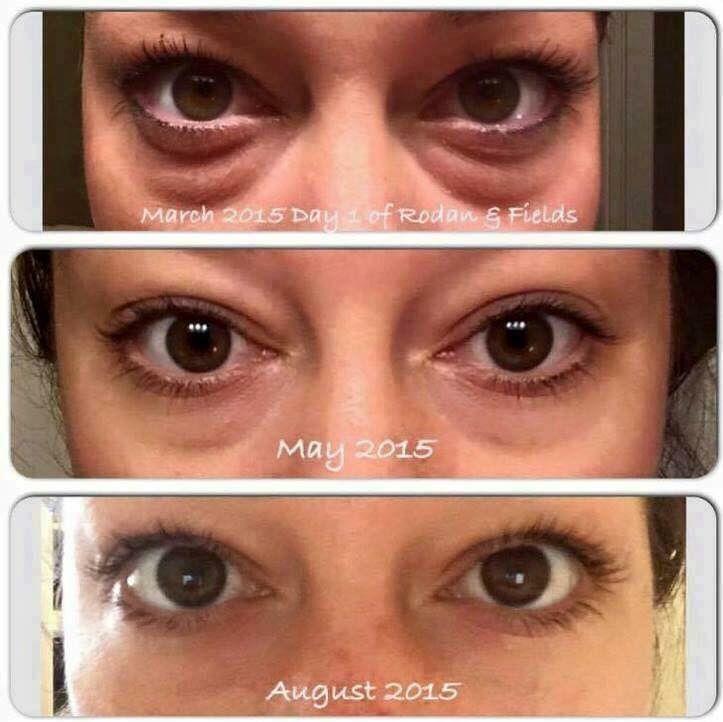 Incredible results from Rodan+Fields Multi-function Eye Cream! Jboyle2.myrandf.com