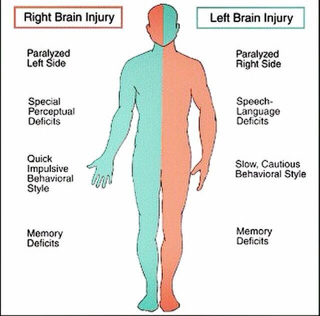 Right and left brain injury