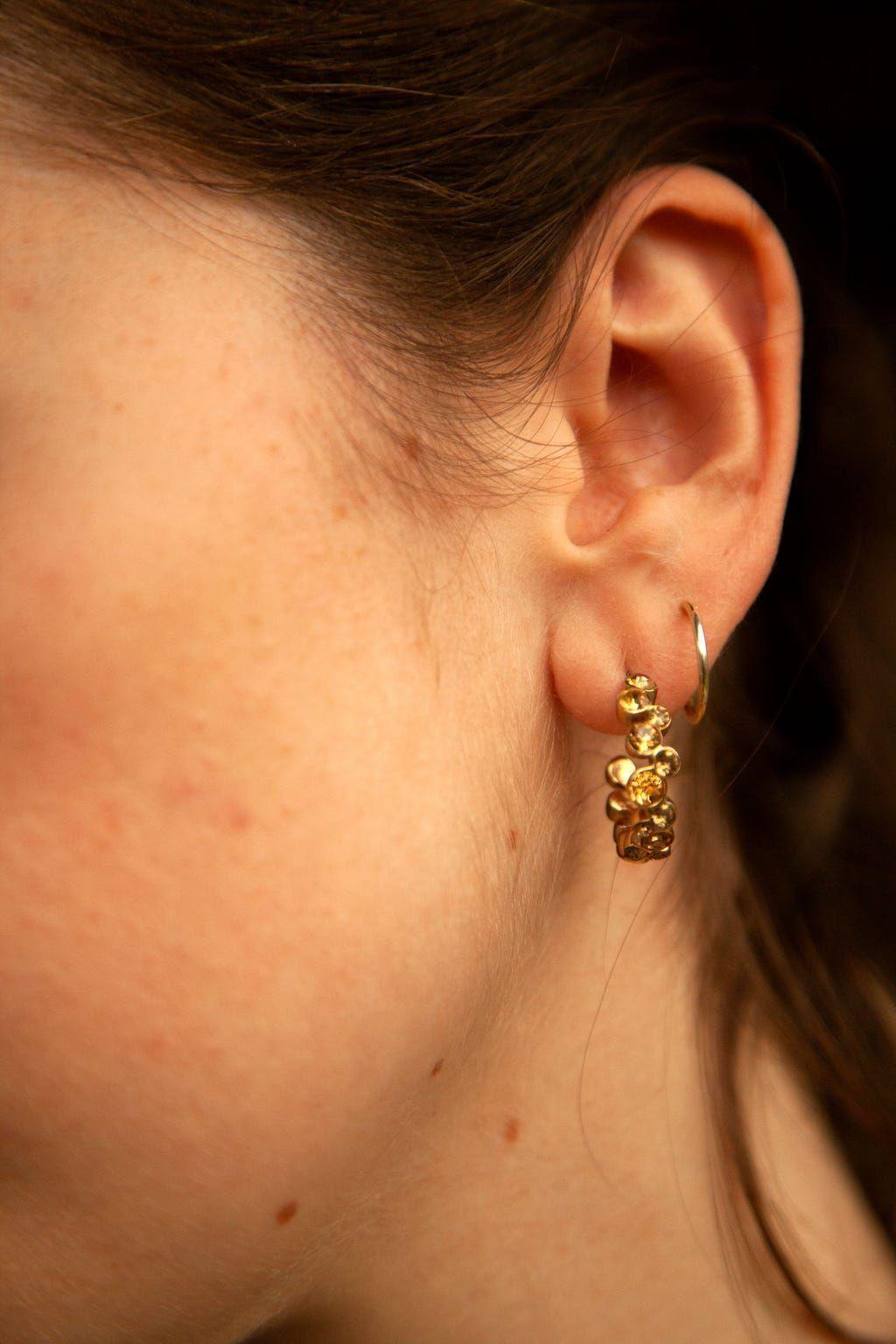 Deep Digs Ear Extraction Oozing Pimple In 2020 Mitesser Ausdrucken Mitesser Pickel