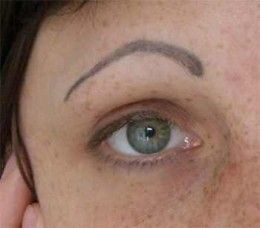 Permanent makeup risks and dangers permanent makeup for Tattooed eyebrows gone wrong