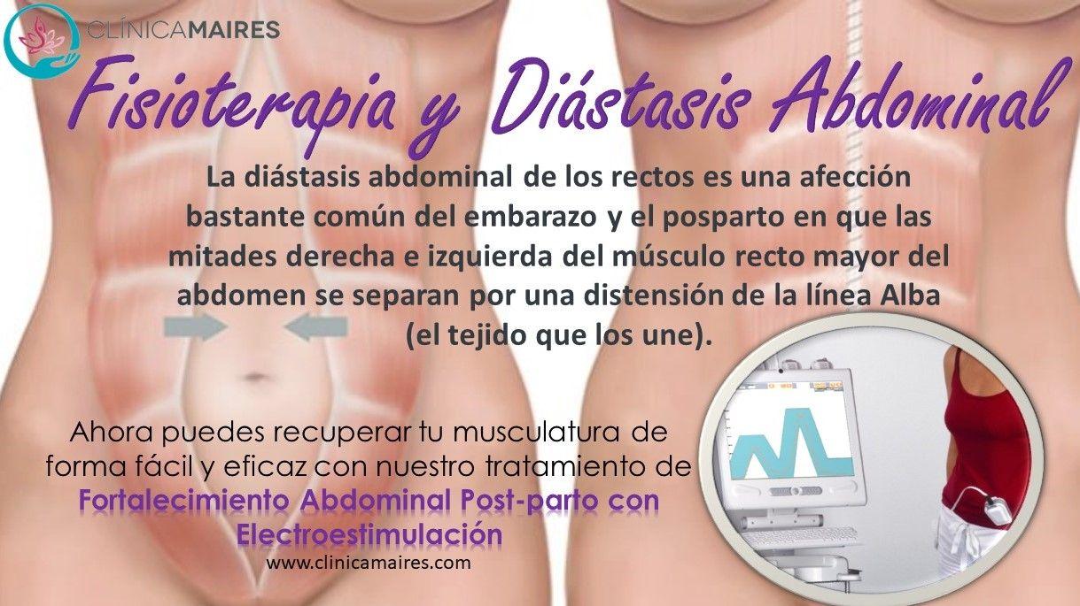 diastasis de los rectos post embarazo