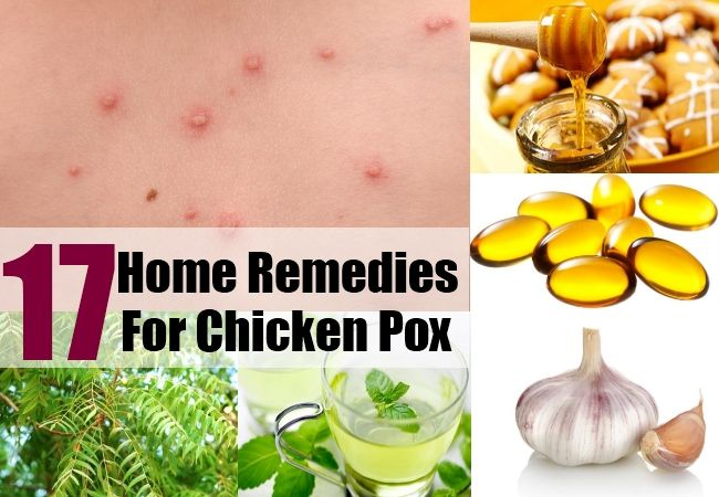 17 Home Remedies For Chicken Pox Health Yahs And Nahs Remedies