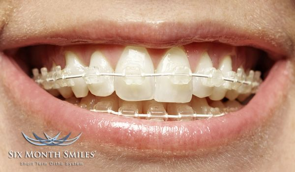 Braces On Six Month Smiles Great For Teens And Adults Check