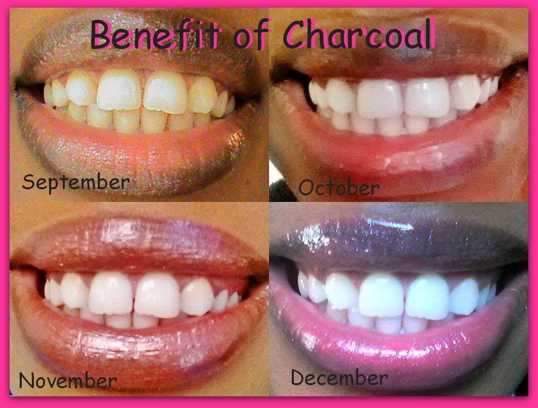 Naturally Whiten Teeth Instantly Cha Chingg Update Beauty