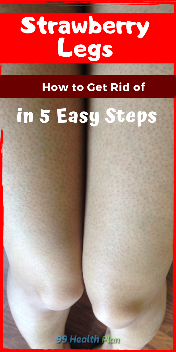 How To Get Rid Of Strawberry Legs In 5 Easy Steps Strawberry