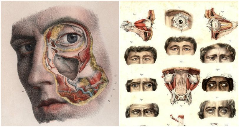 Strabismus 1831 From The Complete Atlas Of Human Anatomy And