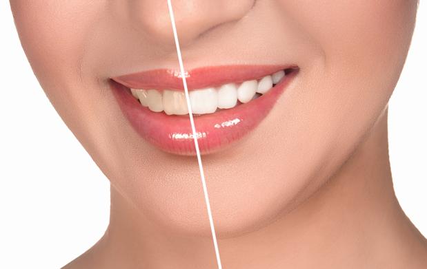 El tabaco, el café, algunos medicamentos, la edad, una higiene bucal deficiente… son sólo algunas de las causas que provocan que nuestros dientes acaben con manchas y con un color amarillento…