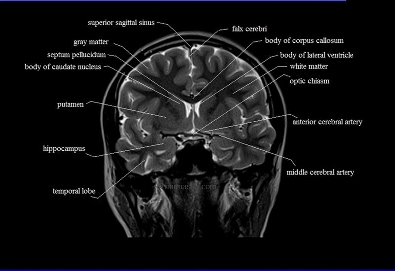 MRI brain coronal cross sectional anatomy image 11 | Imaging ...