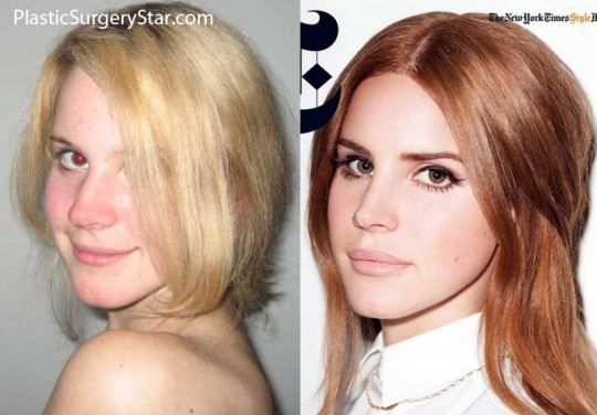 Lana Del Rey Pre And Post Rhinoplasty And Injectable Fillers Nose Job Plastic Surgery Injectables Fillers