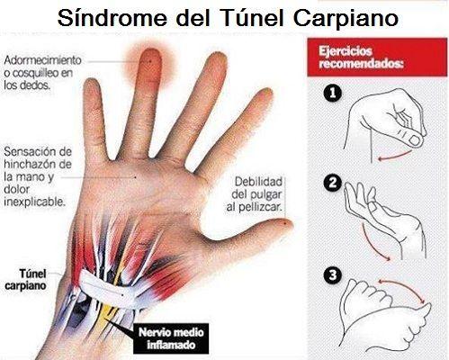 El Síndrome del Túnel del Carpo en el Pádel y su Tratamiento http://bit.ly/1E2MdNC