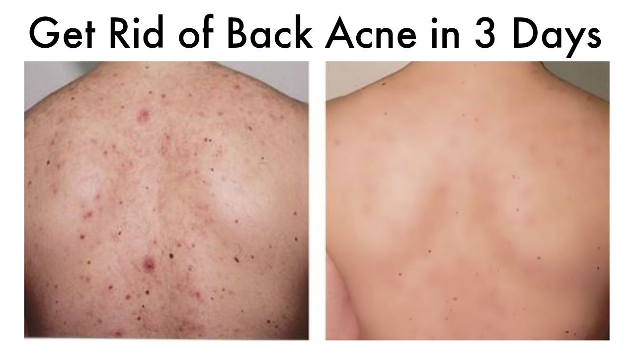 How To Get Rid Of Back Acne At Home In 3 Days Youtube Chest Acne Back Acne Treatment Forehead Acne