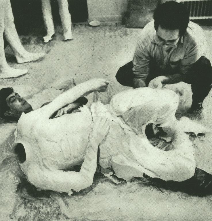 In place of traditional casting techniques, Segal pioneered the use of plaster bandages (plaster-impregnated gauze strips designed for making orthopedic casts) as a sculptural medium. In this process, he first wrapped a model with bandages in sections, then removed the hardened forms and put them back together with more plaster to form a hollow shell. These forms were not used as molds; the shell itself became the final sculpture, including the rough texture of the bandages.