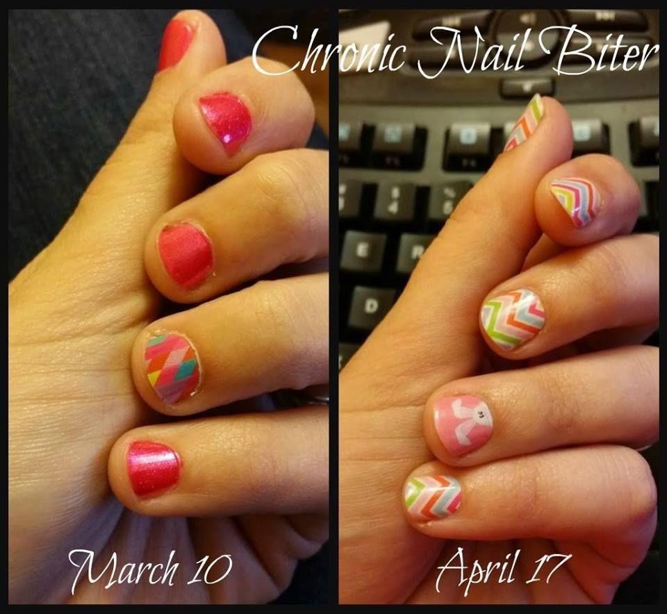 Before and After nail biter. #beforeandafter #nailbiter #nailcare ...
