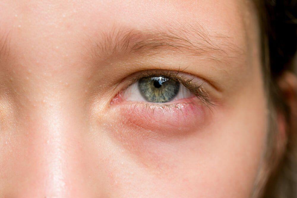 Curando ojos hinchados de alergias