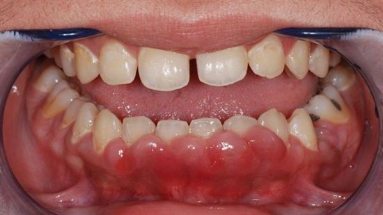 Gingival enlargement, (also termed gingival overgrowth, hypertrophic gingivitis, gingival hyperplasi