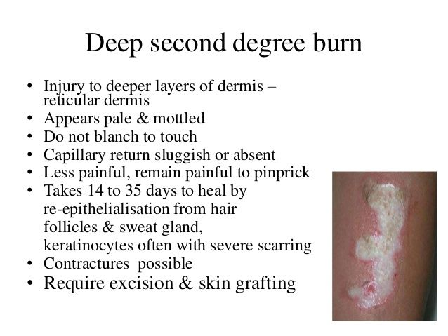 Burn Ppt Shashi Layers Of Dermis Burns Sweat Gland