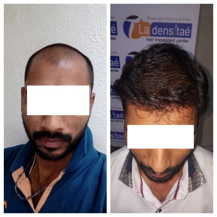 Effective Hair Transplant Center in Pune Best hair