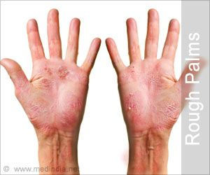 rough palms  beauty tips  beauty hacks skin health how