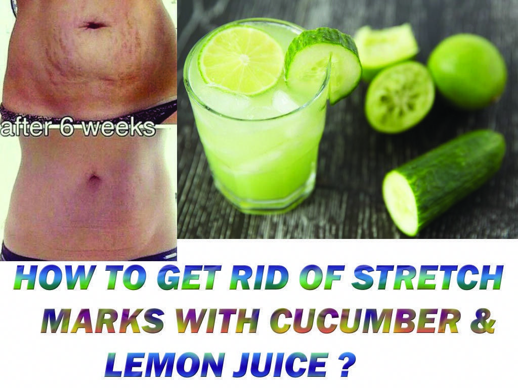 How to get rid of stretch marks fast and naturally