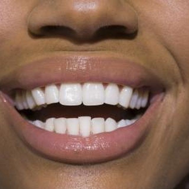 Healthy gums are important for keeping teeth in good condition.