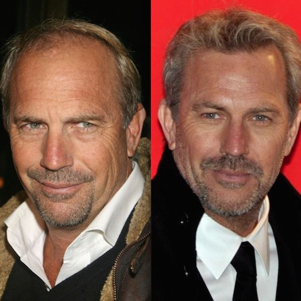 Celebrity Hair Transplants Kevin Costner Hair Transplants