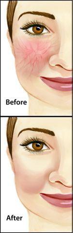 best cream for spider veins on face