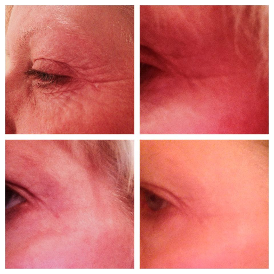 This is my sister Julie after using Acute Care every three days for a month. Wow!