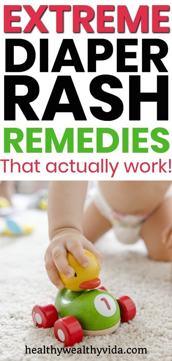 Extreme Diaper Rash Remedies That Actually Work - Healthy Wealthy Vida