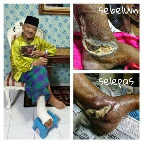 Effect of stemcell to diabetes patient.. whatsapp diya +60163463516 for more info.. :*