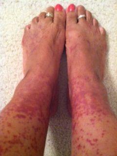 My Legs On Bad Flares Cutaneous Vasculitis Lesions Rash