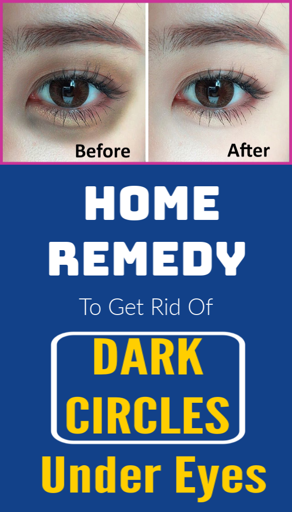 Home Remedy To Get Rid Of Dark Circles Under Eyes #skin # ...