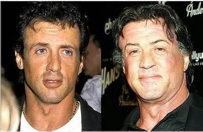 Does sylvester stallone wear a hairpiece