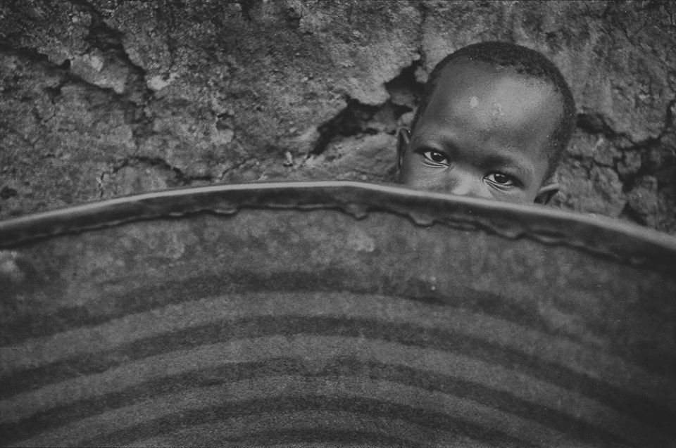 When You Vaccinate Malnourished Children, Many of Them Die