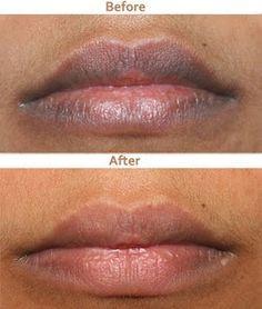 7 Home Remedies To Lighten Dark Lips | beauty | Dark lips