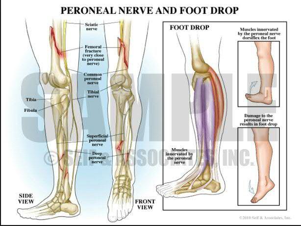 peroneal nerve - google search | nursing | pinterest | foot drop, Muscles