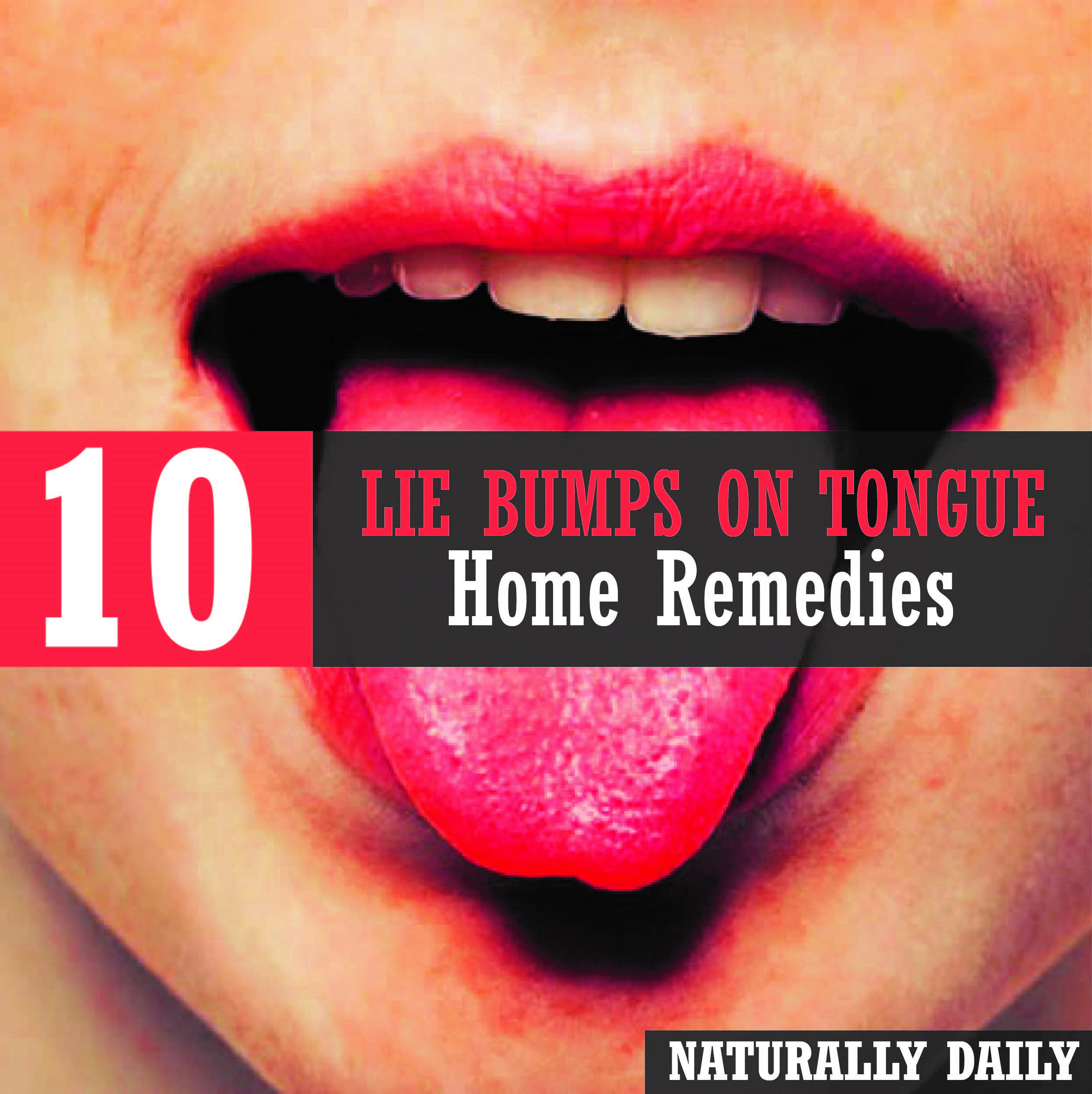 10 Proven Ways To Get Rid Of Lie Bumps At Home