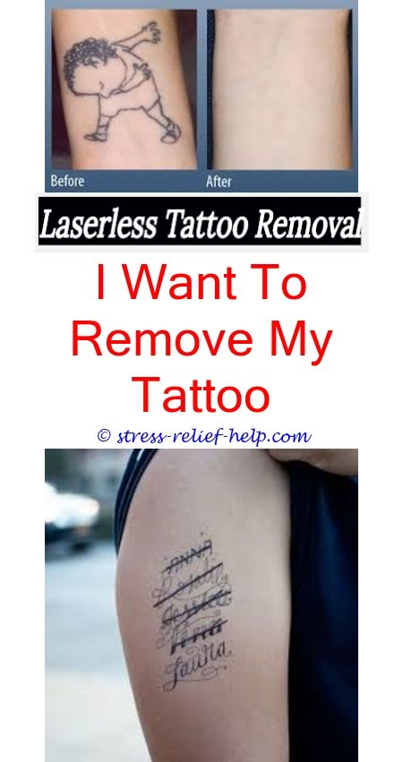 home tattoo removal how to remove waterless tattoos - how to remove ...