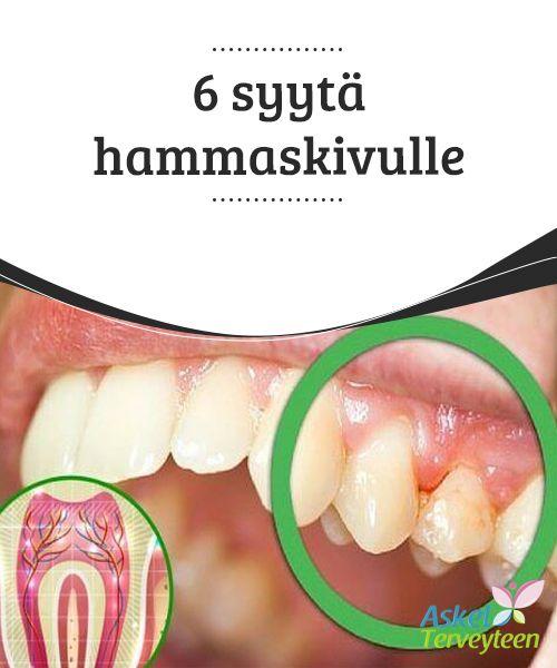 6 syytä hammaskivulle   Yksi #inhottavammista kivuista on hammaskipu. Jos kivun #lievittämiseksi hakeutuu hammaslääkärille, hoito saattaa olla hyvin #epämiellyttävä.  #Terveellisetelämäntavat