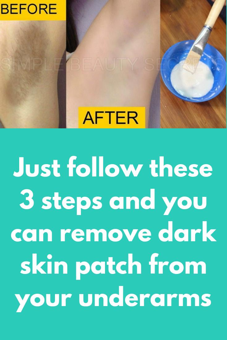 Pin On Skin Lighting