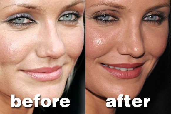how to fix nose bump without surgery