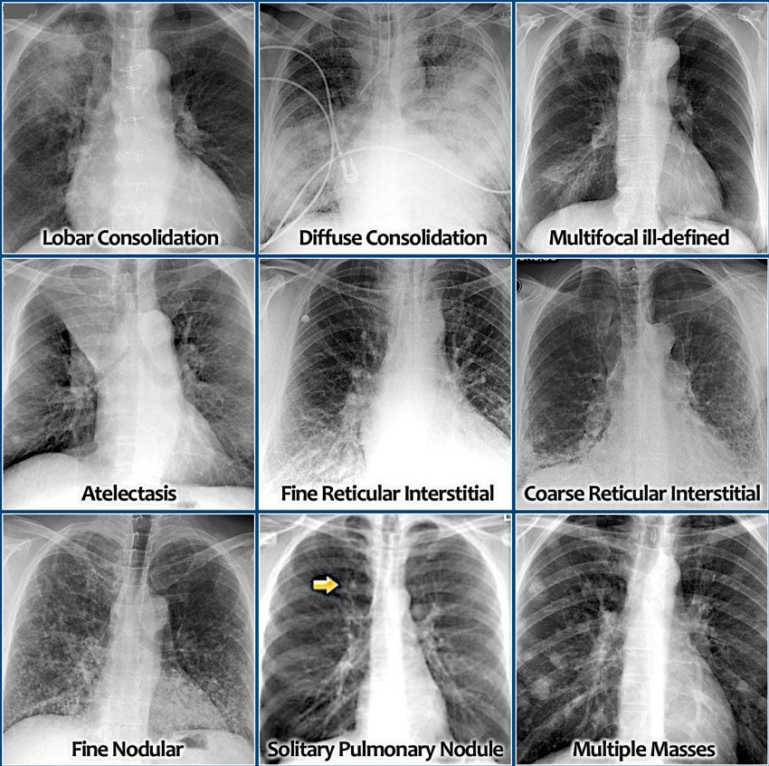 how to read a chest x ray radiology