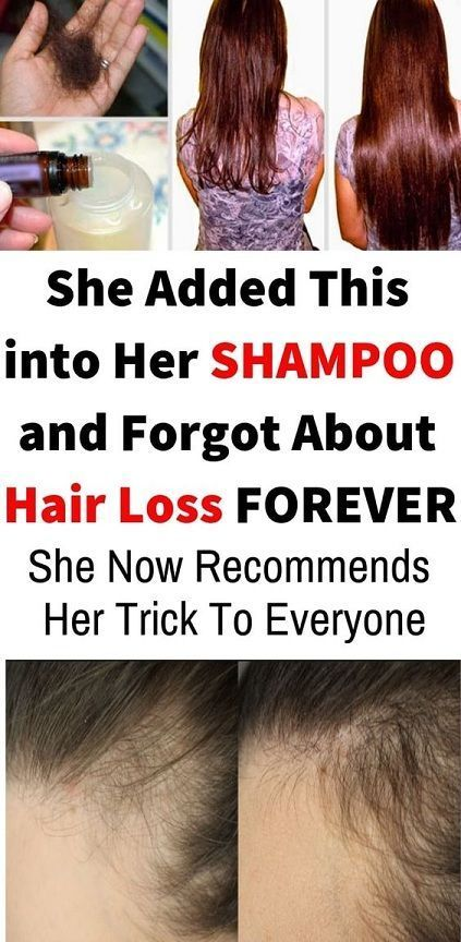 Added This into Her SHAMPOO and Forgot About Hair Loss FOREVER! She Now Recommends Her Trick To Everyone!