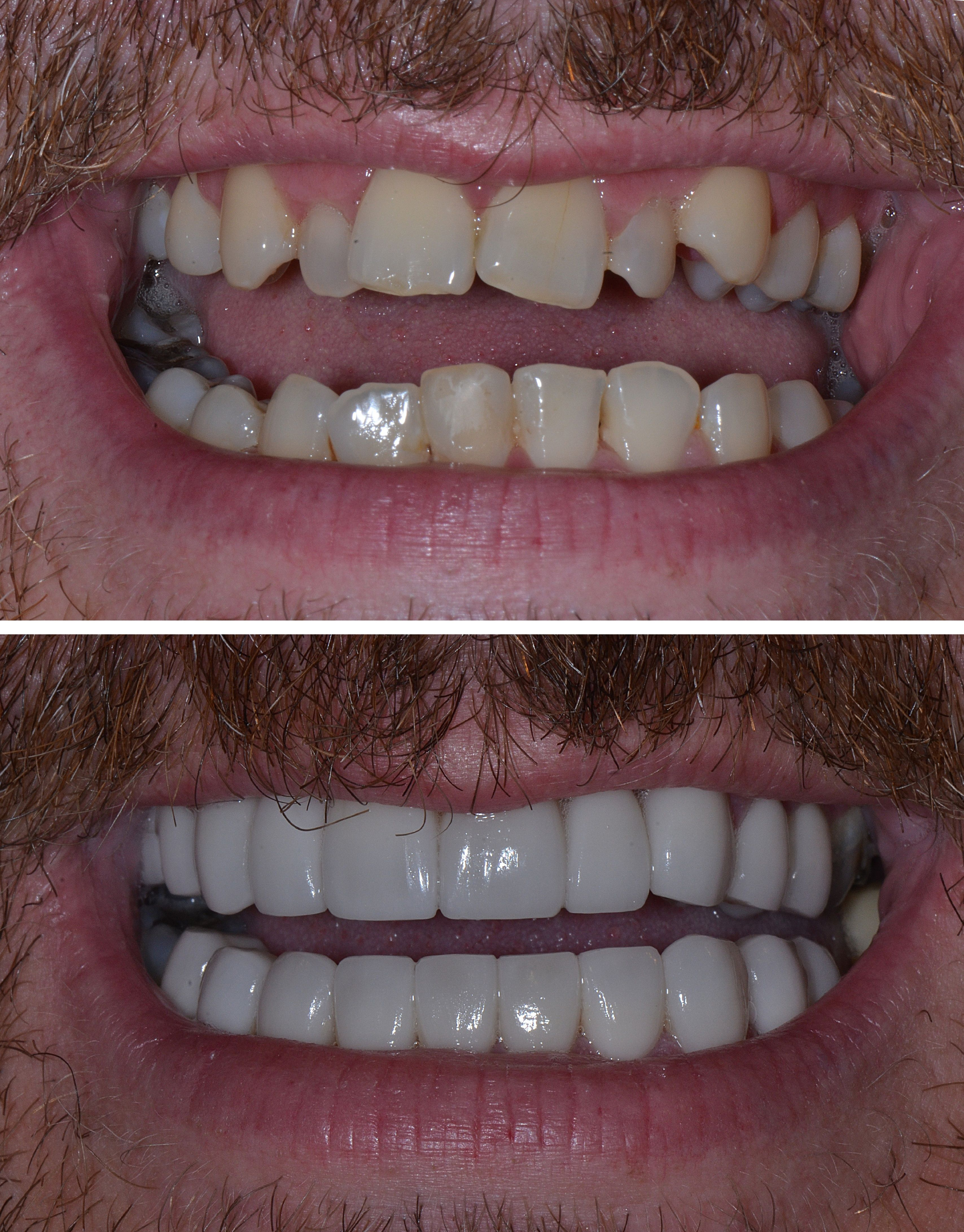 Befor and Agter photos of Eamonn's teeth. CrookedTeeth