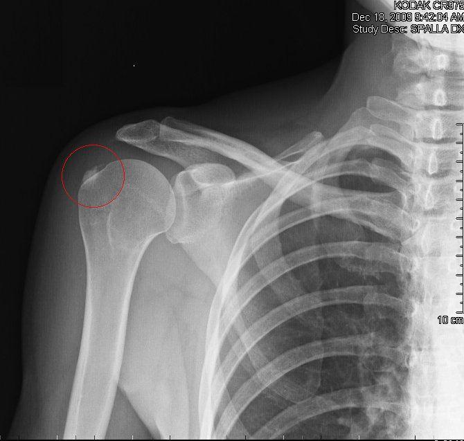 Calcification de l'épaule, symptômes, remèdes et opération ...
