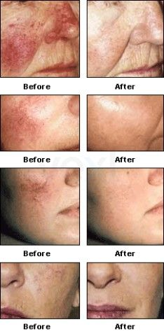 Intense Pulsed Light Rosacea Treatment Ipl May Well Be One Of